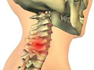 Грыжа шейного отдела имеет ярко выраженные симптомы