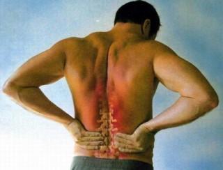 Первый признак хондроза - боль в пояснице