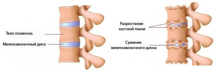 Слева - здоровый позвоночник, справа - пораженный хондрозом