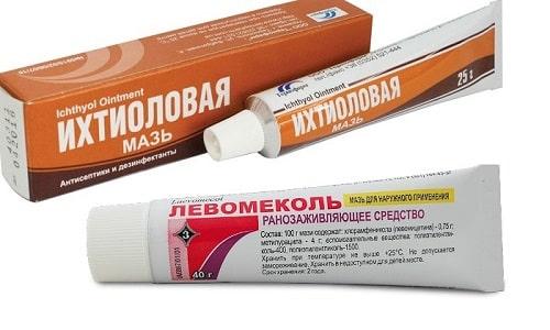 Левомеколь и Ихтиоловая мазь используются для лечения гнойных ран, ожогов, фурункулов