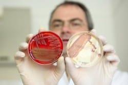 Инфекции - причина першения в горле
