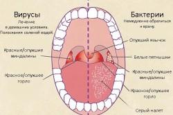 Инфекционные причины и признаки фарингита