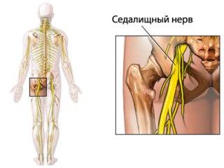 Ишиалгию вызывает ущемление седалищного нерва