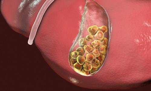 Цикорий обладает эффективным желчегонным действием и способствует растворению камней в желчном пузыре