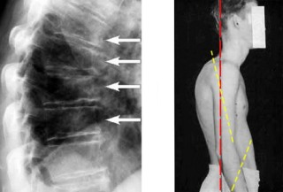Определение кифоза по рентгенограмме