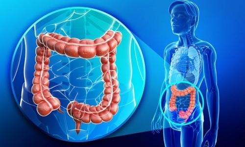 Повышенная выработка ферментов железы или нарушение оттока панкреатического сока может быть следствием воспаления в кишечнике