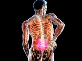 клинические проявления перелома