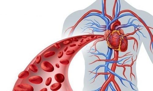 Нарушение кровообращения повышает риск развития острых и хронических воспалительных процессов