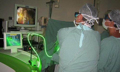Под воздействием лазерных лучей улучшается микроциркуляция в тканях простаты