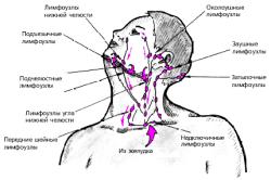 Схема гемитиреоидэктомии