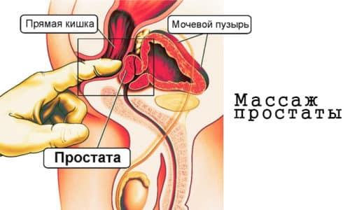 Массаж простаты при простатите считается неотъемлемой частью комплексной терапии болезни