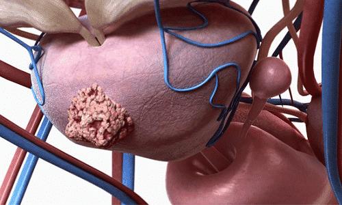 Метастазы при раке простаты возникают при запущенном патологическом процессе на 3-4 стадиях заболевания
