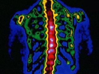 Метастазы - осложнение онкозаболеваний