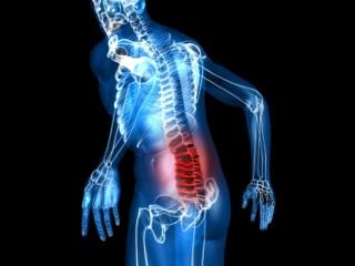 Боль - неизменный спутник остеохондроза