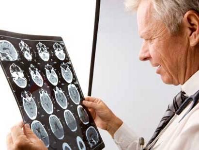 Миелит диагностируют неврологи