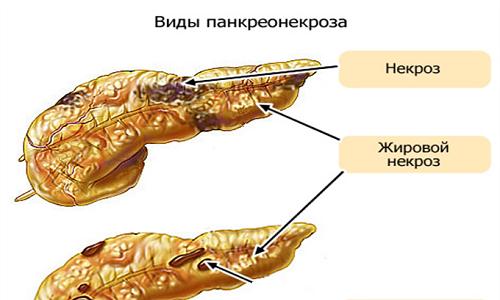 Опасность панкреатита заключается в том, что на тяжелых стадиях заболевания может возникнуть некроз поджелудочной железы