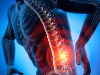 Запущенный остеохондроз полностью устранить невозможно