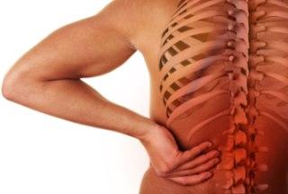 Почему люди болеют остеохондрозом