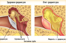 Отит - следствие аденоидита