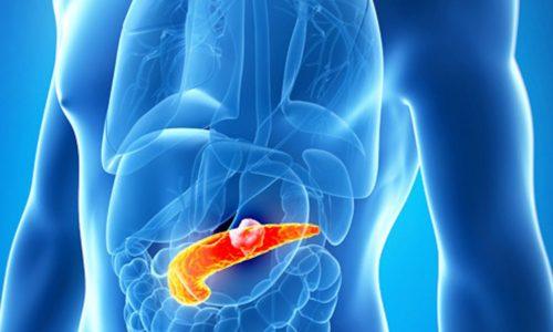 Панкреатит аутоиммунного характера является редко встречающейся разновидностью патологии поджелудочной железы