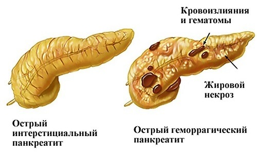 Острое течение панкреатита становится причиной отека серозной оболочки железы, катарального воспаления или некроза тканей органа