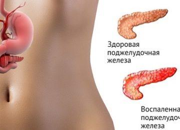 Причины и симптомы воспаления поджелудочной железы