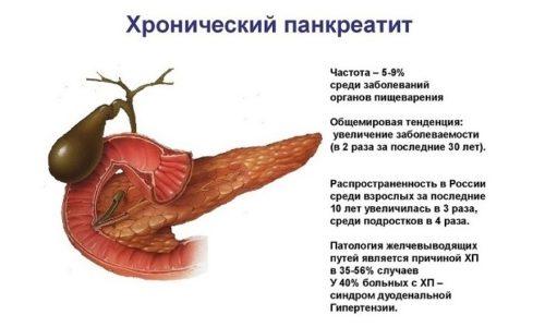 Хронический панкреатит - заболевание, характеризующееся постоянными болями по сравнению с другой гастроэнтерологической патологией