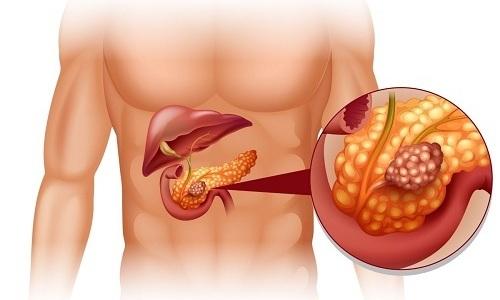 Риск появления онкологического заболевания напрямую связан с тем, как долго человек болен панкреатитом