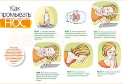 Процедура промывания носа
