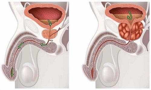 Простатит гнойной формы является осложнением катарального воспаления предстательной железы