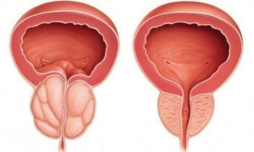 Простатит - воспаление предстательной железы, развивается независимо от возраста и физиологического статуса пациента на фоне снижения иммунитета или внедрения инфекции
