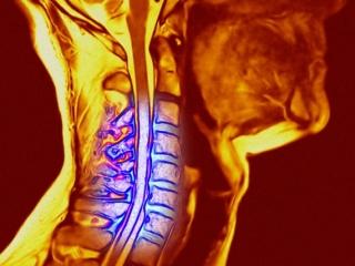 Болевой синдром как проявление протрузии