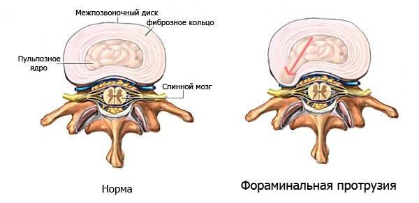 Протрузия - начальная стадия грыжи межпозвоночного диска