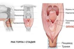 Опухоль в горле в виде шишки
