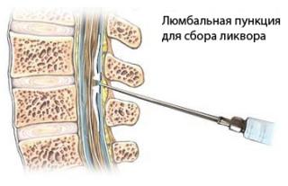 Как выполняется процедура