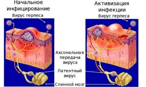 Вирус герпеса постоянно живет в организме человека. Но лишь в какой-то удобный ему момент активизируется