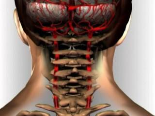 Шейный остеохондроз сдавливает позвоночные артерии