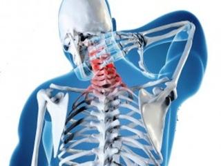 Шейный остеохондроз - многоликая патология