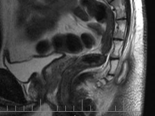 МРТ - самый точный метод диагностики