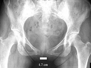 Диагностика симфизита с помощью УЗИ