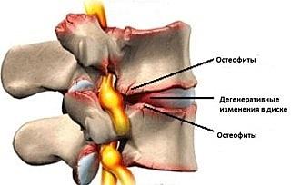 Остеофиты - костные наросты