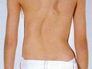 Главный симптом - дугообразное искривление позвоночника