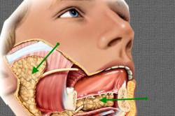 Опухоль слюнной железы