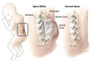 Как проявляется спина бифида