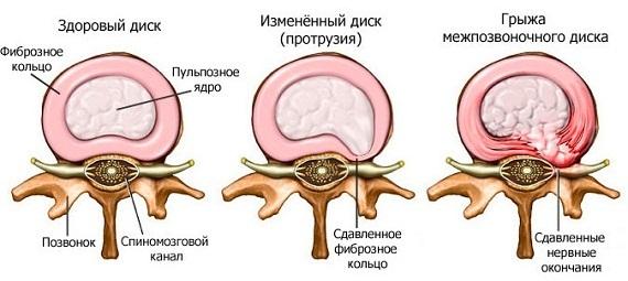 Схема образования спинной грыжи