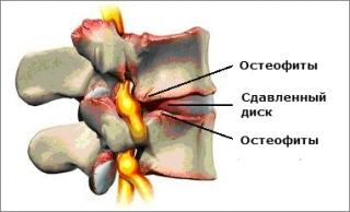 Результат спондилеза - остеофиты