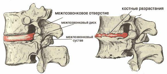Спондилез поражает суставы