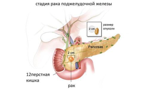 Длительное течение заболевания, особенно при отсутствии лечения, может привести к перерождению клеток органа и развитию рака поджелудочной железы