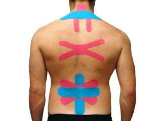 Сегодня тейпы широко используются и для лечения травм спины
