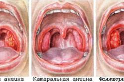 Виды ангины